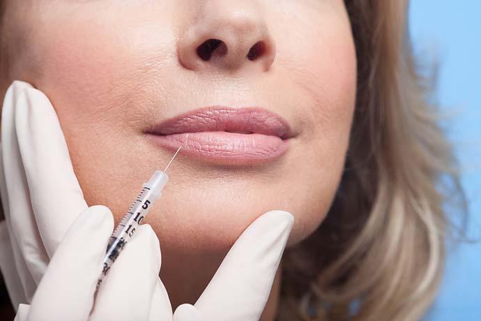 "Botox noun an unfortunate lip-out Botox. (e.g., ""I would have broken 80 if it wasn't for that Botox on 18."")"