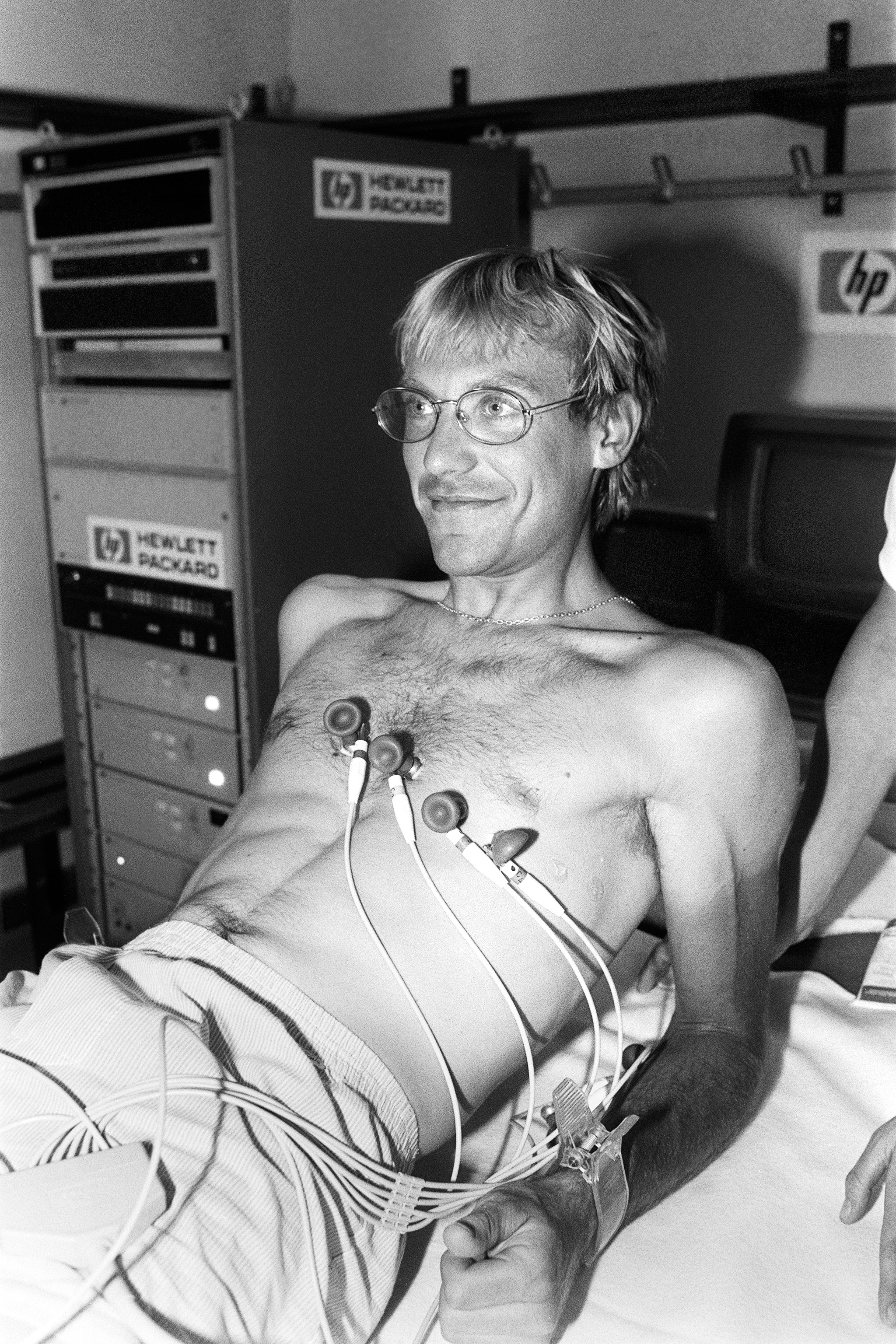 French cyclist Laurent Fignon undergoes a medical exam before the start of the Tour de France cycling road race on June 27, 1984 in Bobigny. Fignon revealed on June 11, 2009, during the recording of a TV show that he suffers advanced stage cancer, but said that there he has no links with doping products. Fignon won the Tour de France in 1983 and 1984.