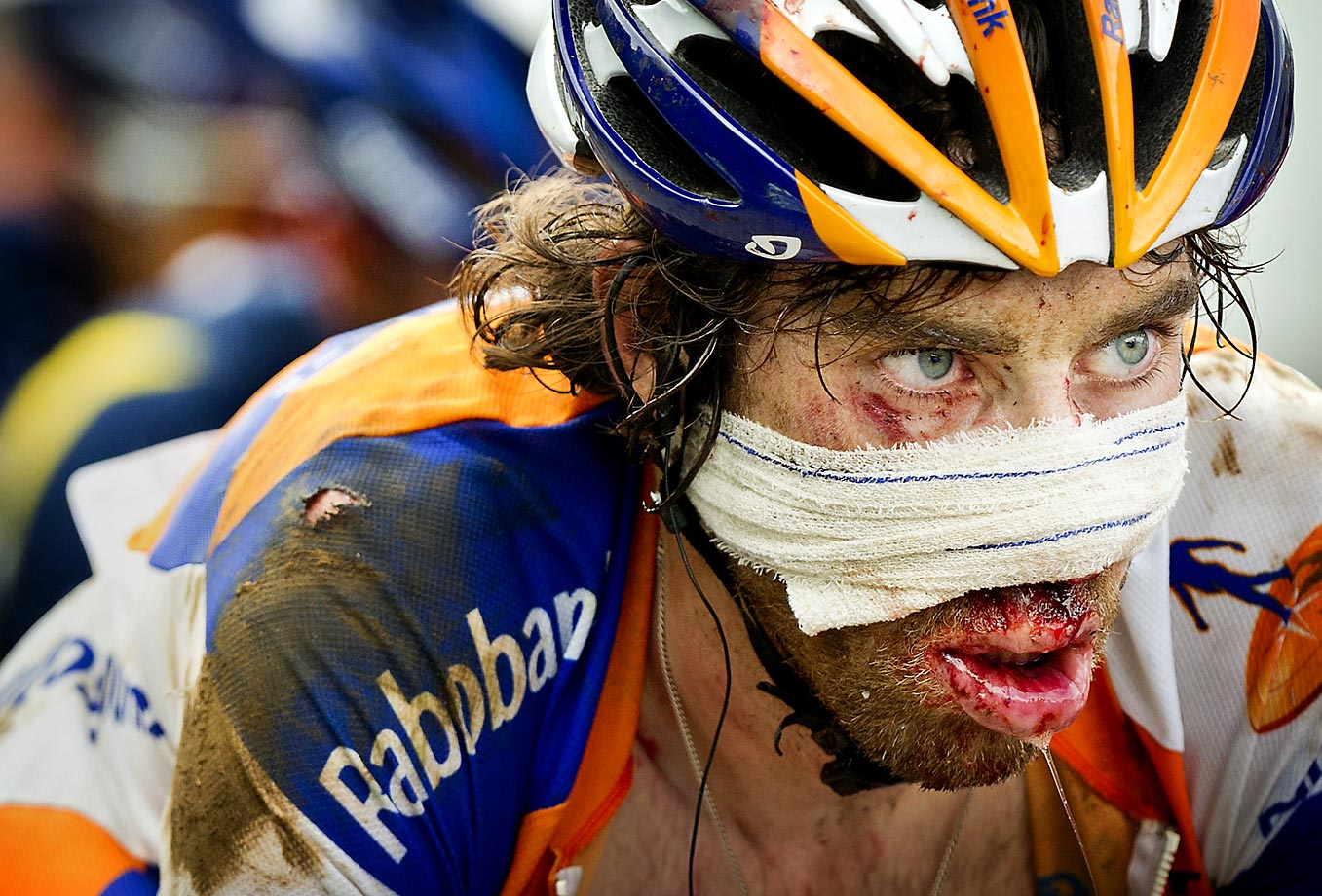 "Five days after Hoogerland was sent flying, his Rabobank teammate Laurens ten Dam somersaulted off  his bike on a high-speed descent of  the Col d'Agnes, landing face-first in a ditch. He took the start the next day, deep gashes on his nose requiring eight stitches, ""Still 25 fewer than Johnny,"" he noted."