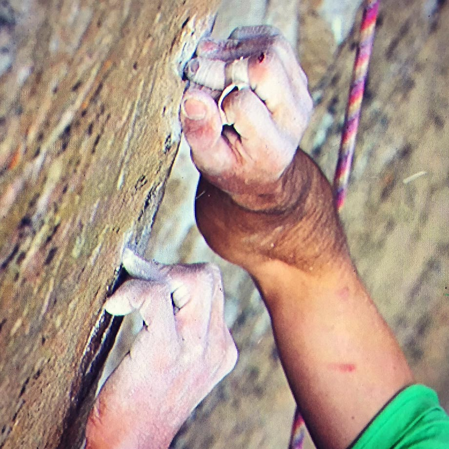 Kevin Jorgeson's fingers hopefully recovered.