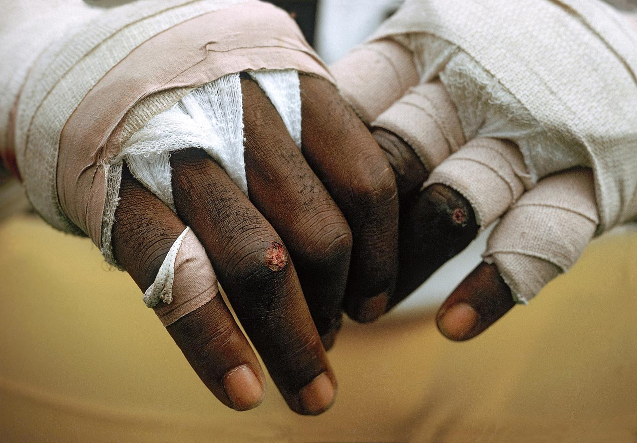 The Mayhem of football took a toll on the hands of Steelers defensive end L.C. Greenwood.