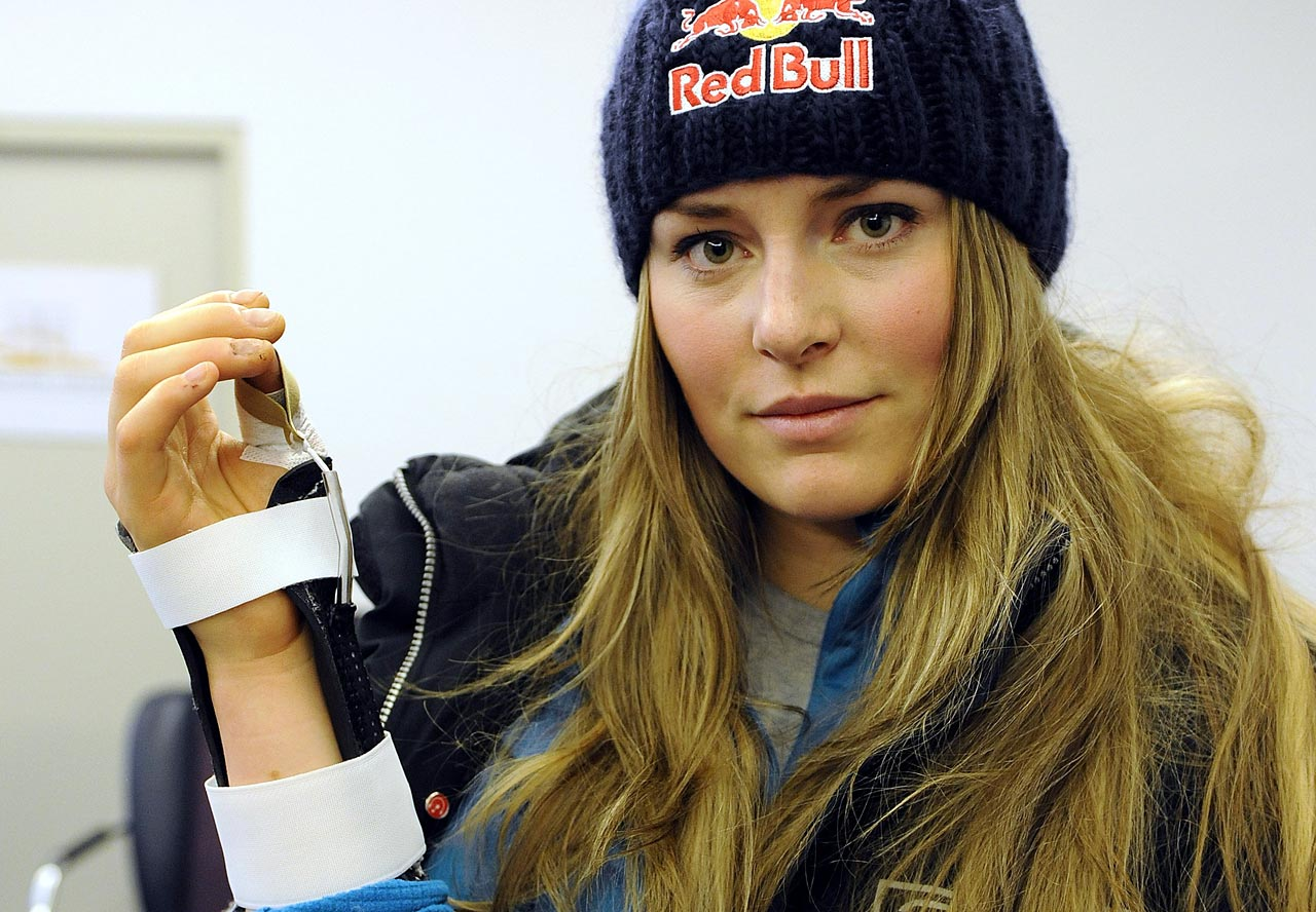 Vonn underwent surgery after cutting into the tendon of her right thumb with the top of a champagne bottle while celebrating her downhill victory in the World Championships on Feb. 9, 2009.