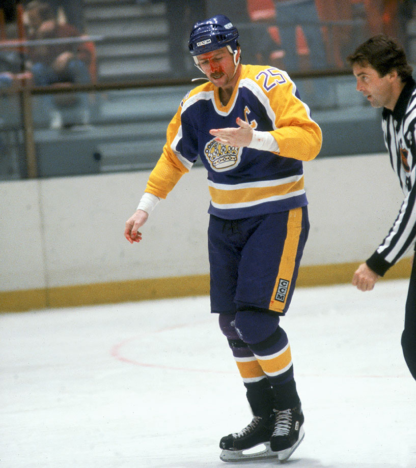 Lewis was playing his seventh season on the Islanders' blueline when he was sent to the Kings along with Billy Harris in the deal that brought Butch Goring to New York. While his former teammates captured the next four Stanley Cups, Lewis finished his career with just three series wins with Los Angeles and Detroit.