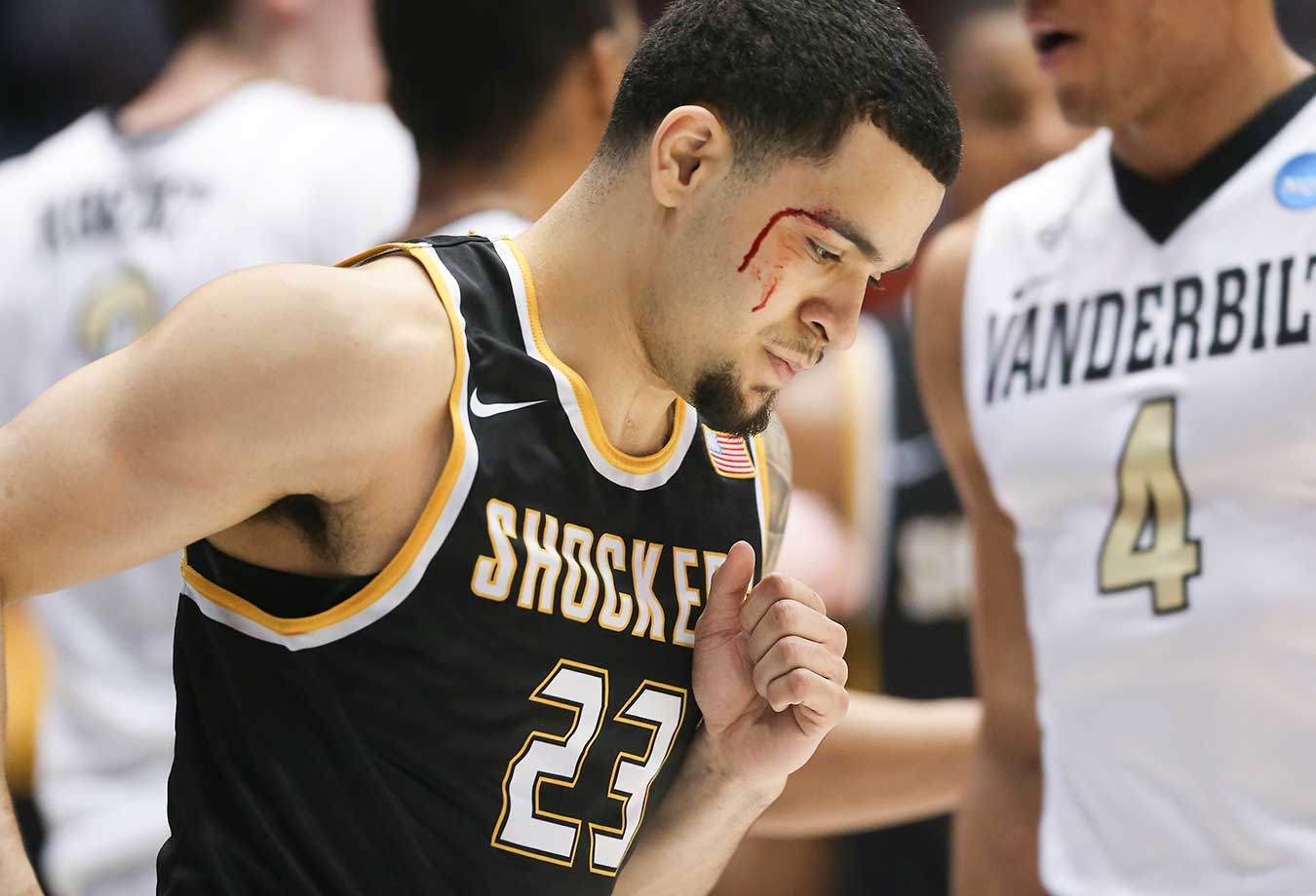 Wichita State's Fred VanVleet is bloodied after taking an elbow to the face against Vanderbilt.