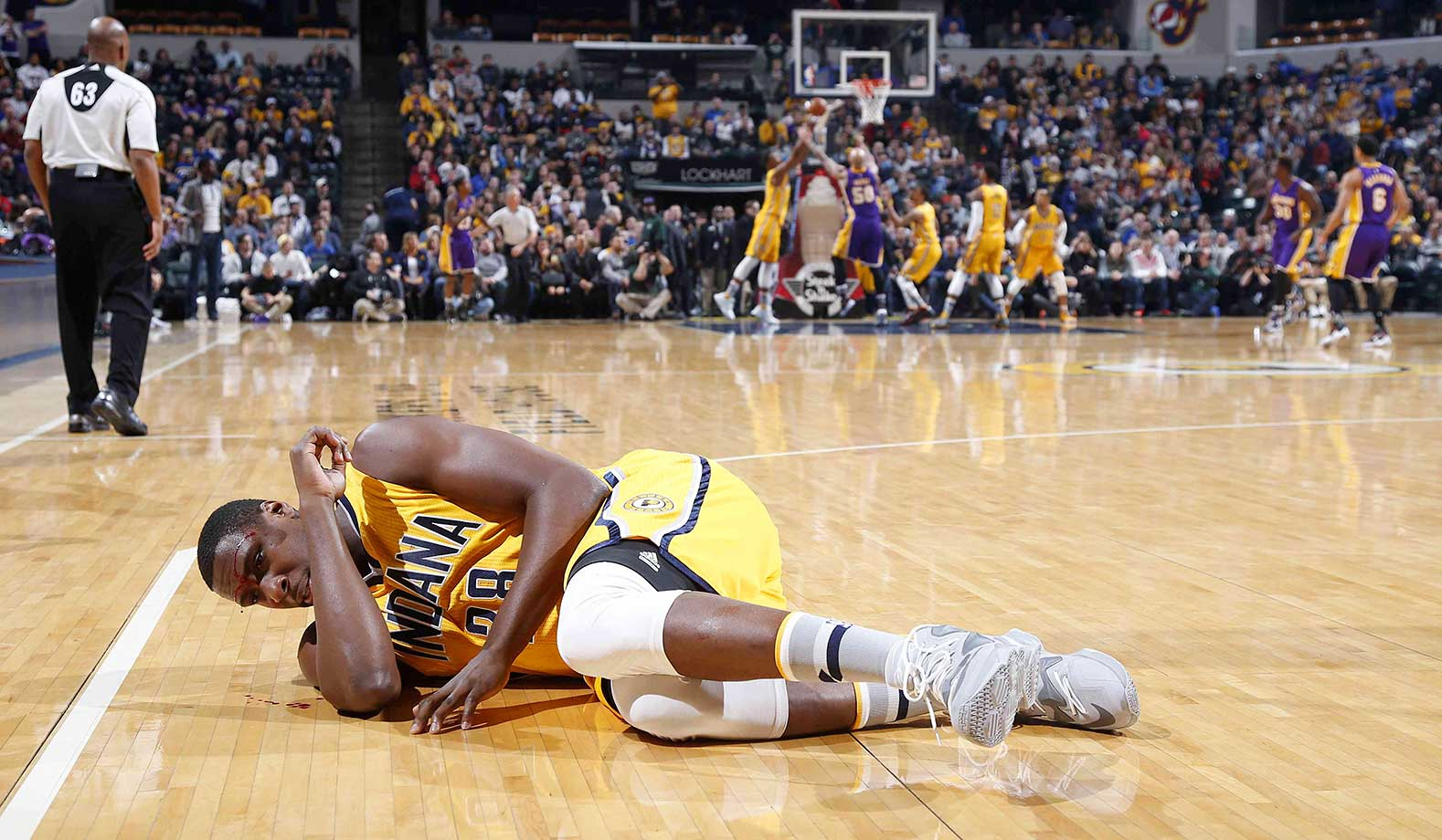 Ian Mahinmi of Indiana lies bleeding on the floor after being hit in the forehead against the Lakers.