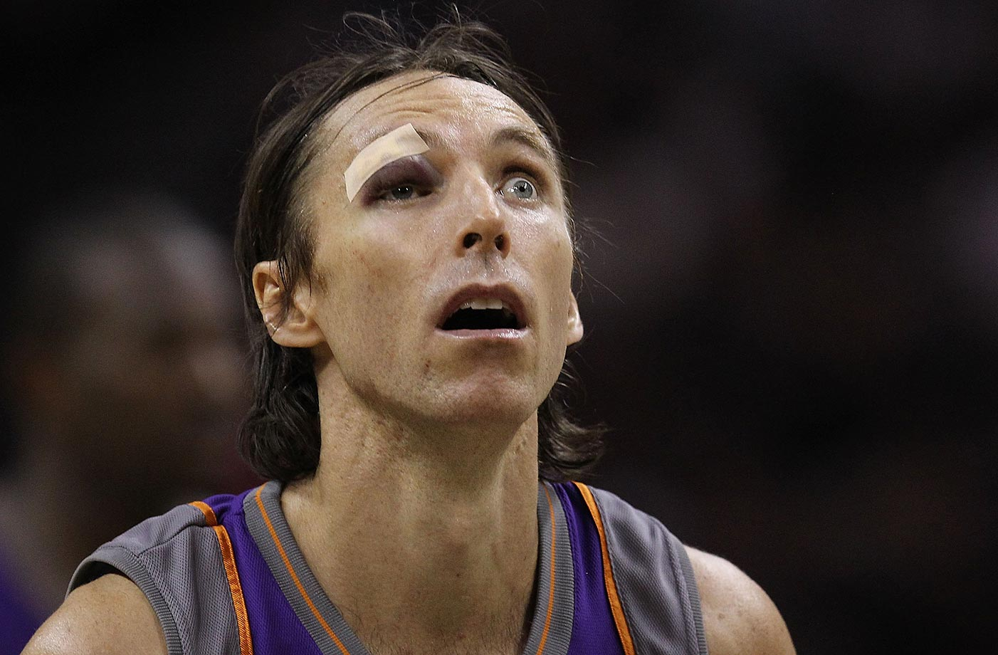 Steve Nash of the Phoenix Suns after receiving six stitches to his eye against the San Antonio Spurs in Game 4 of the 2010 Western Conference semifinals.