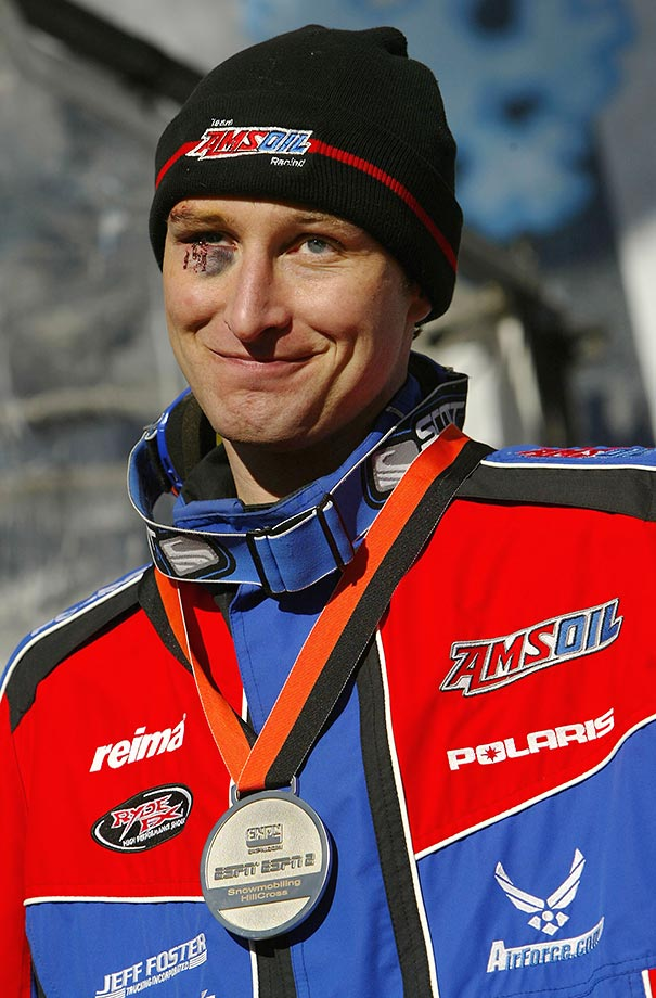 Justin Tate of Minnesota sports a black eye from qualifying in the Snowmobile Hillcross during the 2004 Winter X Games.