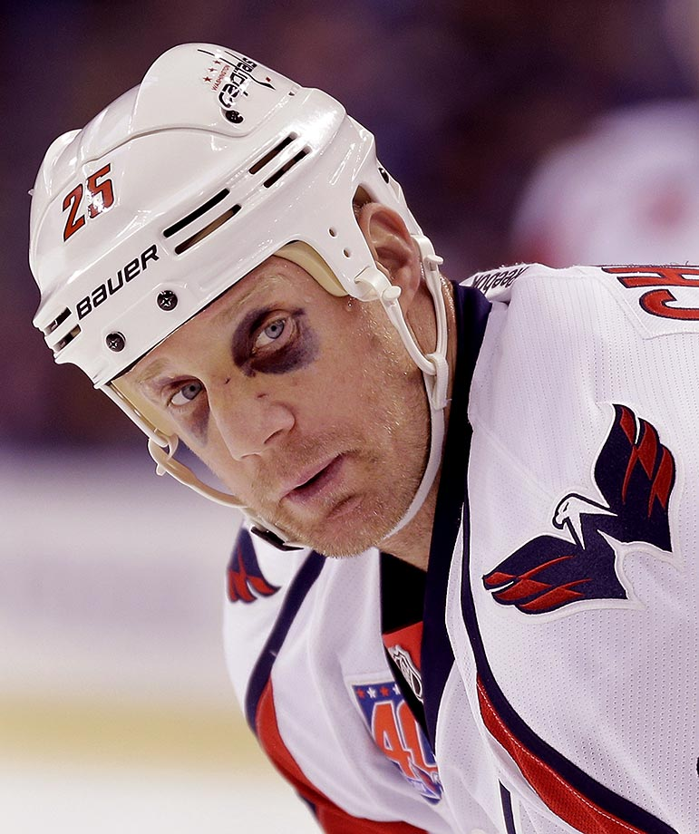 Washington Capitals left wing Jason Chimera sports two black eyes during a 2014 game against the Tampa Bay Lightning.