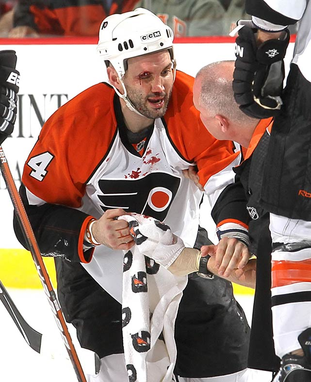 In Game 5 of the Flyers' 2010 first-round series vs. New Jersey, Laperriere dropped to block a slap shot and was hit in the head by the puck. (The video of the play is not for the faint of heart.) He needed 60-70 stitches to close his wound and suffered a concussion and fractured orbital bone. But he made it back in time to play in another eight games as the Flyers reached the Stanley Cup Final where they lost to Chicago. By training camp the following September, Laperriere was still feeling the effects of his injury and he ultimately decided to retire.