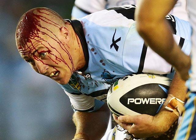 Bryce Gibbs of the Cronulla Sharks looks like he ran into an angry ticket scalper before his round one match against the Gold Coast Titans at Remondis Stadium in Sydney, Australia.