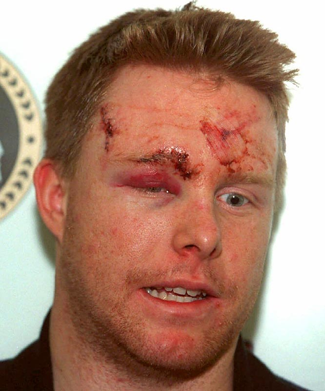 The Ottawa Senators winger looked like he'd been hit by a train, but it was a crushing check by Eric Lindros in a 1998 game that sent Dackell off the ice on a stretcher and into the sawbones' office for 30 stitches.