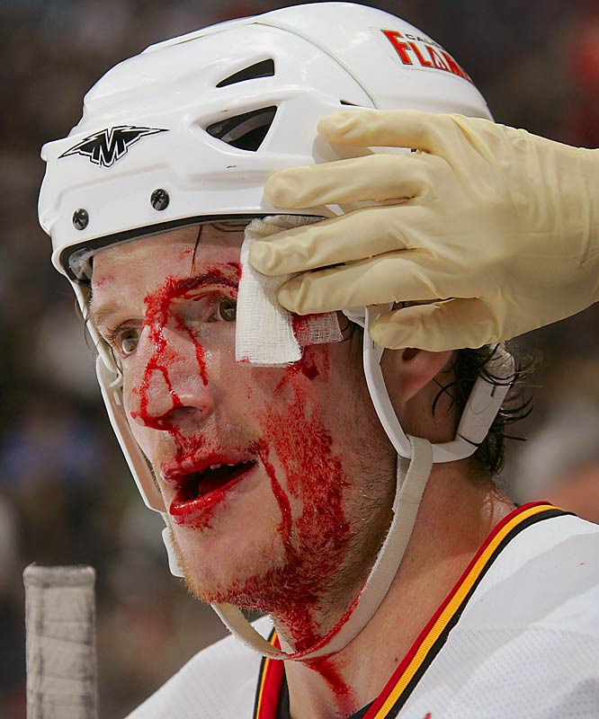 The Calgary winger was in need of a little cleanup after he came out on the dirty end of a high stick in a 2006 game against Vancouver.