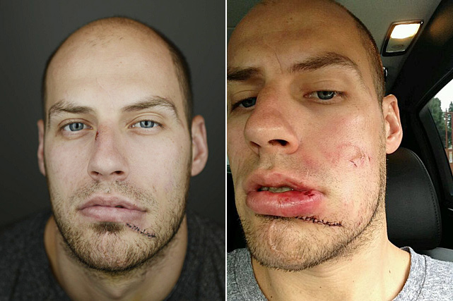 Hockey players are usually not a very pretty sight, especially during the Stanley Cup Playoffs. The Anaheim Ducks captain sported the old baseball face after being hit in the face by a Tyler Seguin slap shot during Game 1 of his team's 2014 first-round series vs. the Dallas Stars. Here's a look at some of the NHL's other notable battered mugs through the years.