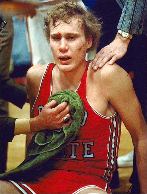 """At Minnesota on Jan. 23, 1972, Ohio State led Minnesota 50-44 with 36 seconds to go. Luke Witte was fouled hard while going up for a layup. Minnesota's Corky Taylor quickly extended an arm to help Witte up but instead kneed him in the groin and punched him in the head. Minnesota's Ron Behagen escalated the assault by kicking and stomping Witte while still on the floor. To make things more embarrassing, Minnesota fans booed as Witte was carried from the floor. He was hospitalized for several days, and his injuries, in the eyes of many, permanently affected his career. Taylor and Behagen were suspended for the remainder of the season by Big Ten commissioner Wayne Duke."" -- Marc Szczesny-Pumarada, Melbourne, Fla."
