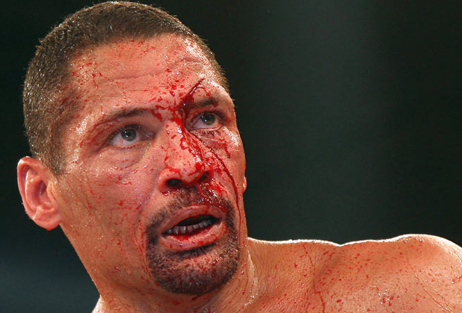 Ten years after his last fight, former IBF champion Henry Maske outpointed and bloodied U.S. fighter Virgil Hill in a fight last March in Munich. The blood started flowing in the eighth round, when the 43-year-old fighters' heads collided.