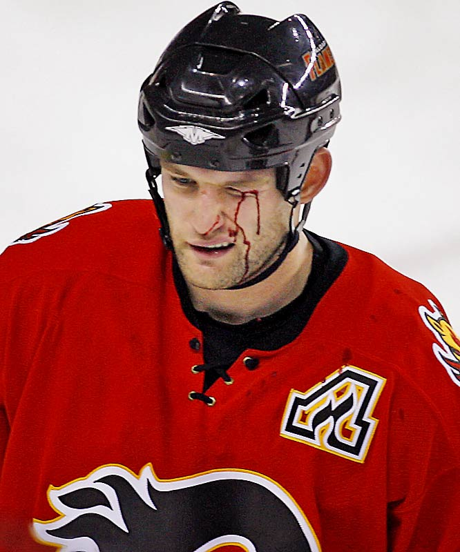 The Calgary Flames blueliner caught some rubber courtesy of the St. Louis Blues in a November 2006 game.