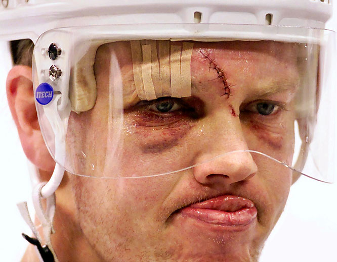 It's amazing how much carnage a little rubber puck can do. The Maple Leafs captain needed 15 stitches after he got nailed in the noggin during a November 2000 game.