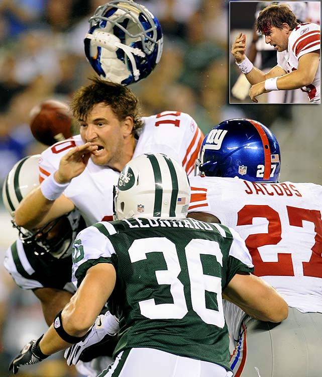 The bloody scalp Eli Manning suffered in a preseason game against the Jets brought to mind just how vulnerable NFL players are after losing their helmets. Here are some other instances of helmetless players over past seasons.