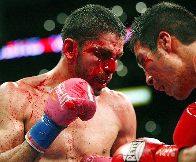 Venezuelan Jorge Linares' bloody face was a result of a TKO loss to Antonio Demarco of Mexico in a WBC lightweight title fight.