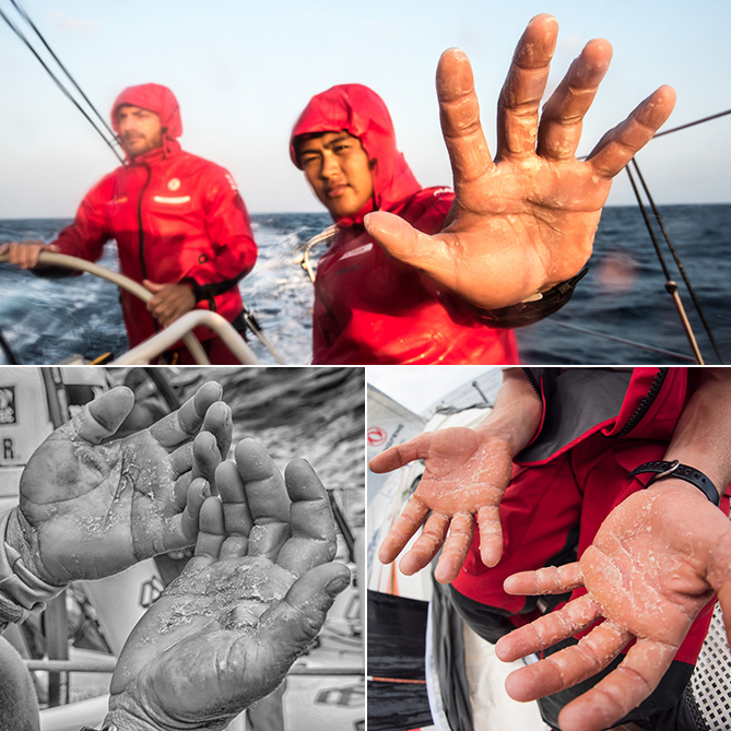 Sailors show off the toll the work on the boat takes on their hands.
