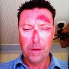 Robert Allenby was allegedly abducted, beaten and robbed at a bar in Honolulu.