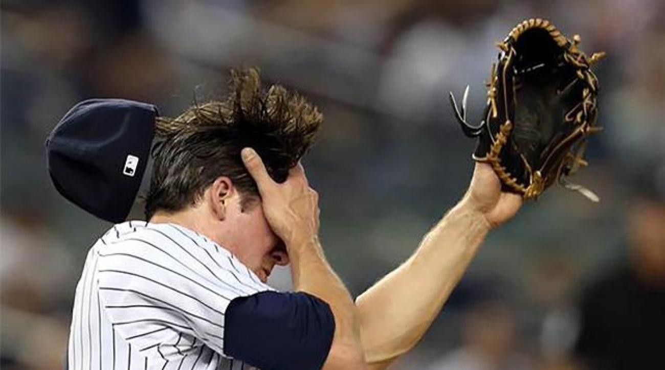 Yankees pitcher Bryan Mitchell hit in face by line drive, has nasal fracture