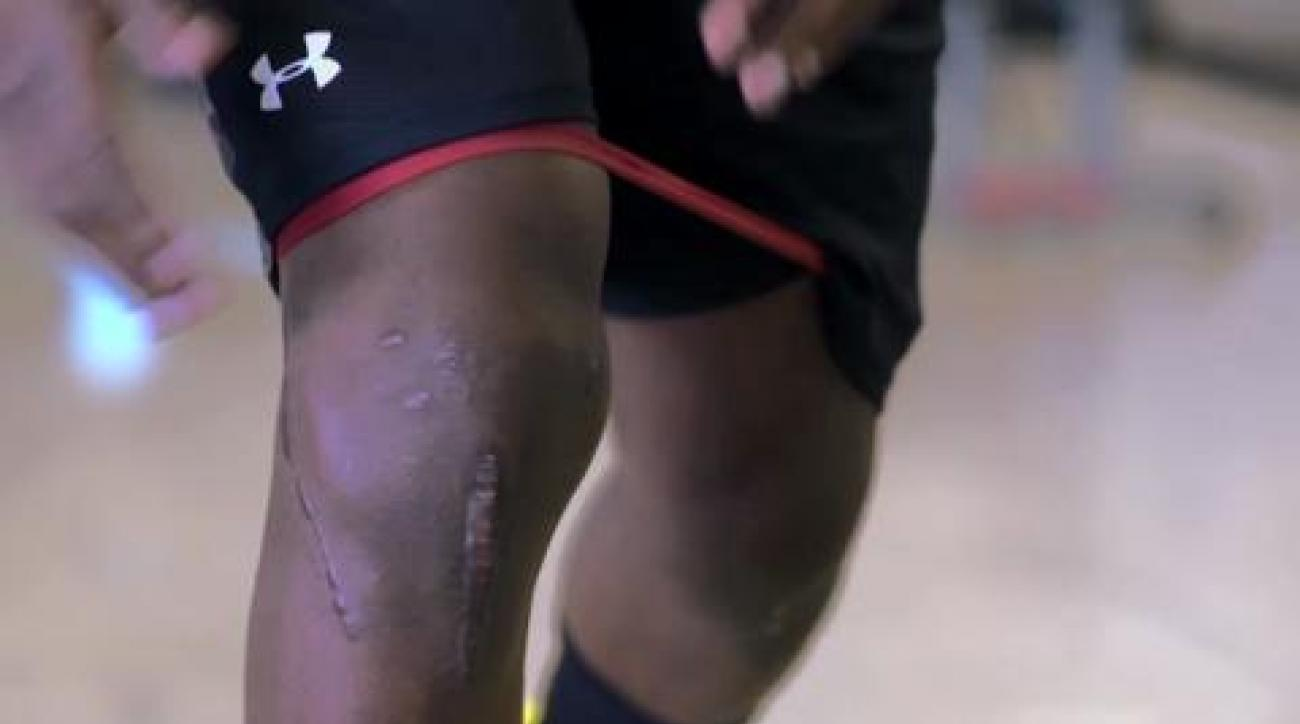Marcus Lattimore's determined recovery