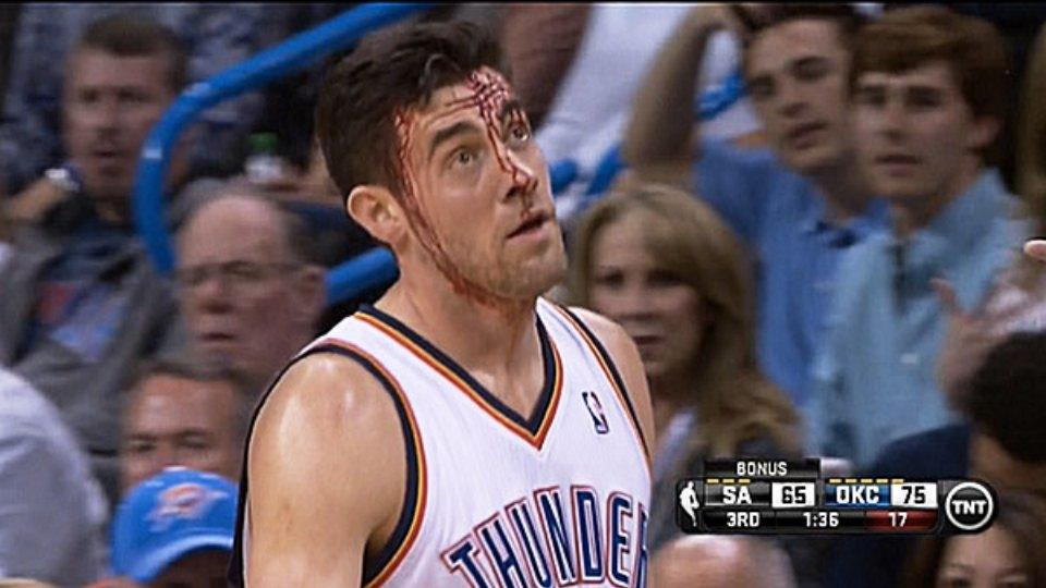 Thunder are auctioning off a pair of Nick Collison's blood-stained sneakers