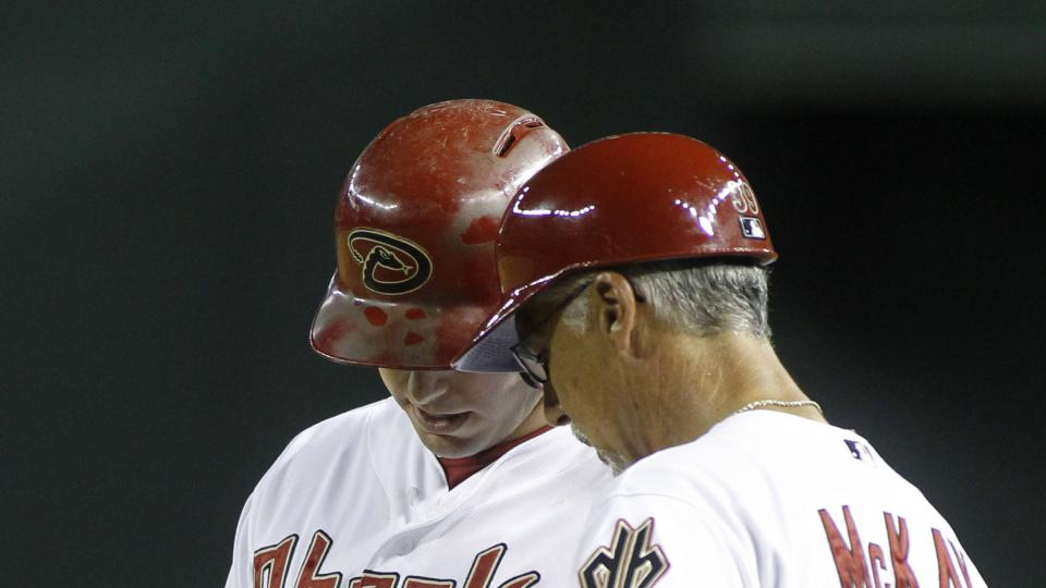 Arizona Diamondbacks' Paul Goldschmidt, left, shows first base coach Dave McKay (39) where he was hit by a pitch during the ninth inning of a baseball game against the Pittsburgh Pirates, Friday, Aug. 1, 2014, in Phoenix. The Pirates defeated the Diamondb