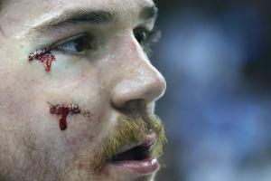 andrew-shaw-stitches-auction.jpg