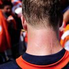 Peyton Manning's scar from neck surgery is visible as he signs autographs during the first day of Broncos training camp.