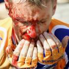 On Stage 3 of the '06 Tour, Dutch rider Erik Dekker hit a pothole at a high speed, then hit the pavement face-first. He was taken by ambulance to a nearby hospital and put under general anesthesia so doctors could remove the pieces of gravel embedded in his face. He also chipped several teeth.