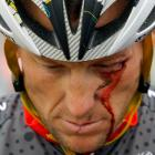 Vision of the future foretold: the same day the Wall Street Journal published damning allegations about systematic doping on Armstrong's teams, May 20th, 2010, the Texan crashed out of the Tour of California. Armstrong would crash three more times during Stage 10 of that year's Tour de France, losing the race on that day.
