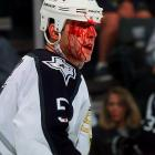 Looking like a cast member of The Texas Chainsaw Massacre, the Dallas Stars' defenseman survived (barely) a powwow with the boards, courtesy of the New York Rangers in a 1997 game.