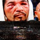 """A crowd of 41,734 watched Margarito receive the beating of a lifetime. """"We were going good until I got cut and that's when the problems started coming,"""" he said through a translator afterward."""