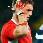 George North of Wales receives treatment for an injury during the Rugby World Cup.