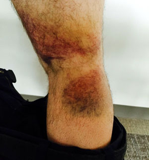 Chris's hamstring after third race.