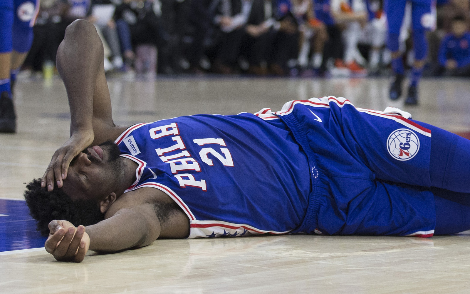 Embiid needs surgery on orbital fracture; has concussion