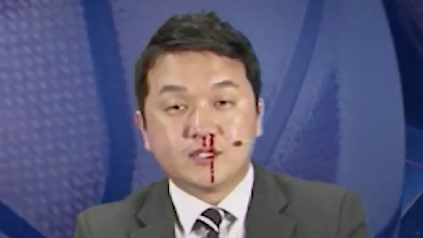 Korean sportcaster Jo Hyun-il gets bloody nose on air (video)