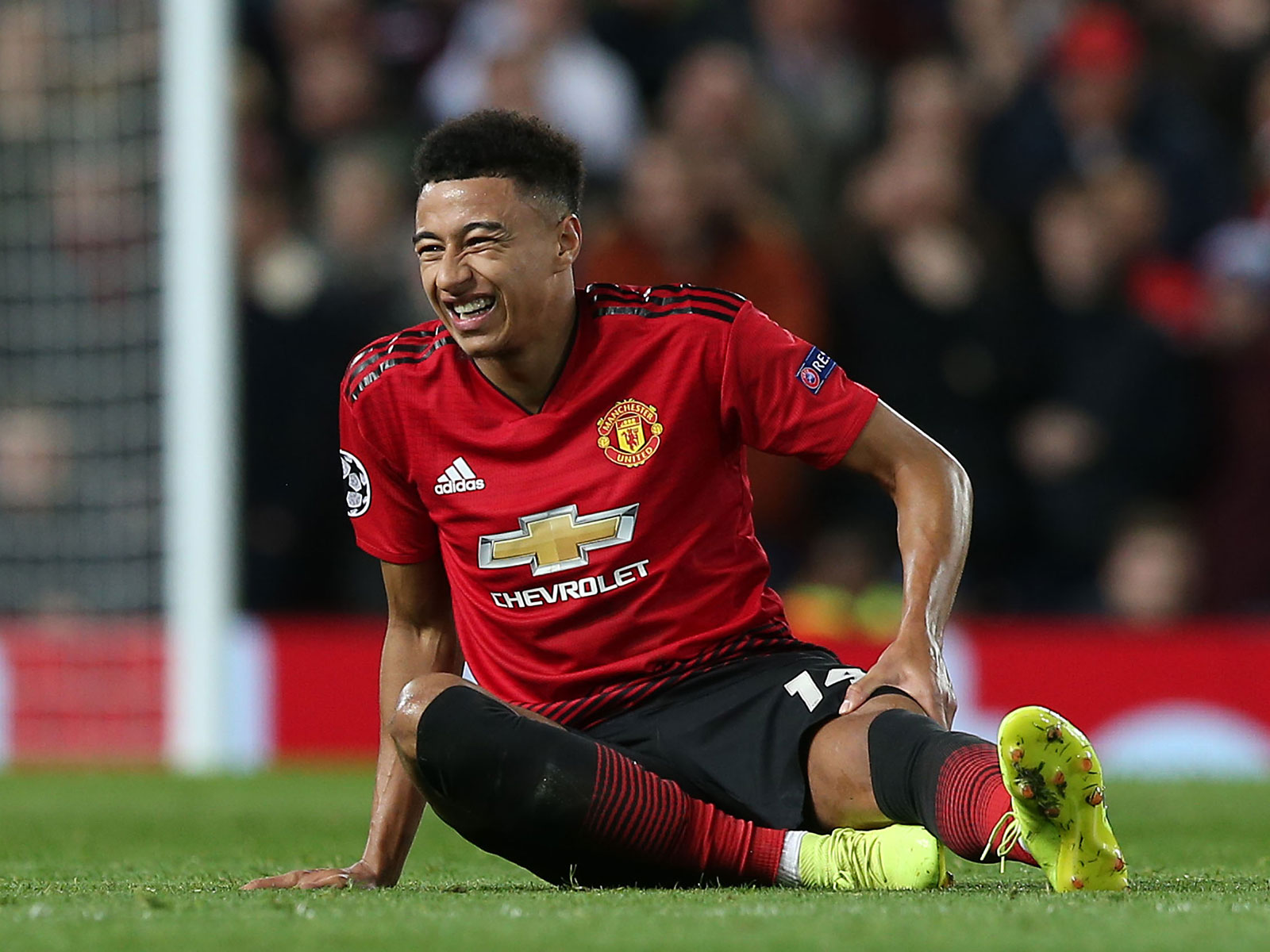 Jesse Lingard was injured for Manchester United vs. PSG