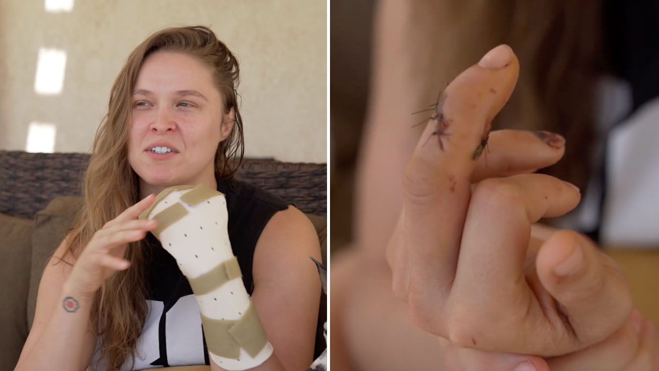 Ronda Rousey: Finger injury detailed in new video