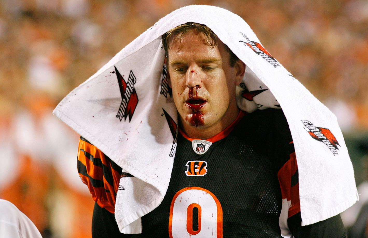 Palmer walks off the field after breaking his nose in a preseason game against the New Orleans Saints.