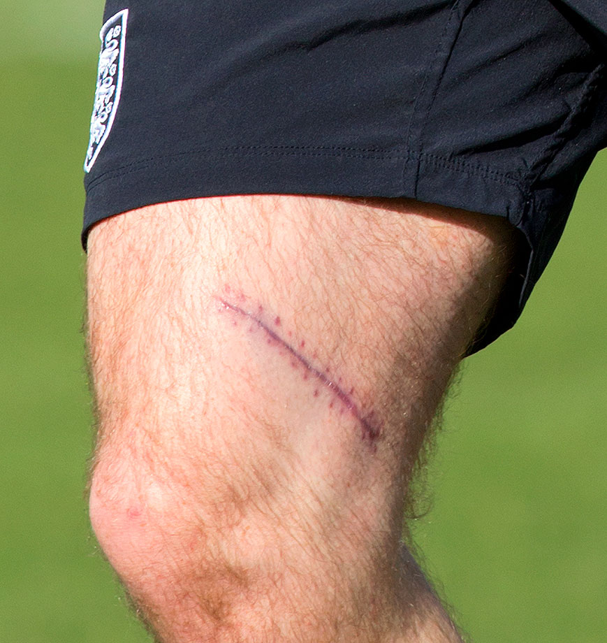 Rooney's surgery scar, following a recent injury, is seen on his right thigh as he takes part in an England team training session during the official launch of The Football Association's National Football Centre at St. George's Park on Oct. 9, 2012 in Burton, England.