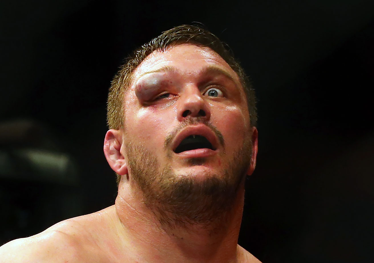 Matt Mitrione reacts after his UFC heavyweight bout against Travis Browne in Boston. Guess who won.