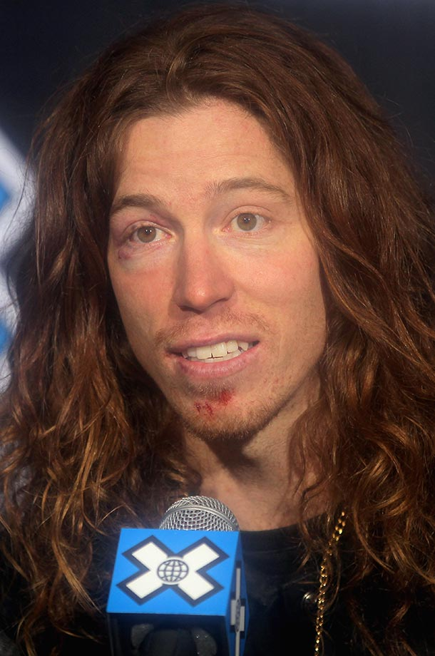 Shaun White exhibits some facial abrasions and a black eye suffered from a fall during Winter X Games 2012.