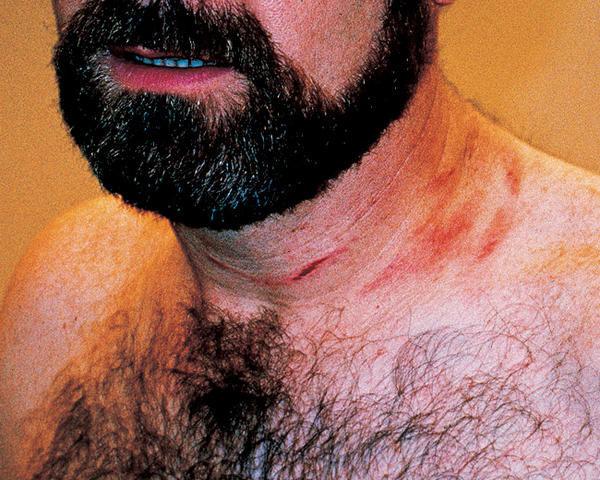 P.J. Carlesimo's neck :: AP
