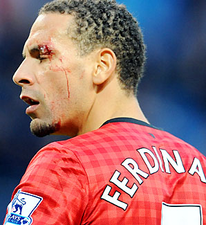Rio Ferdinand looks on after being hit by an object at the Manchester derby.