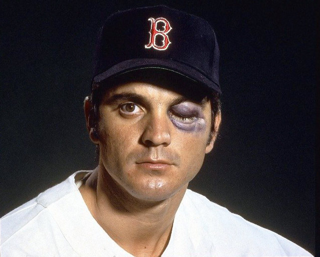 Massachusetts native Tony Conigliaro led the AL in home runs at age 20 in 1965 and looked like a Red Sox fixture when a fastball from Jack Hamilton smashed into his face, breaking his cheekbone, dislocating his jaw and doing serious damage to his eye. He missed all of 1968 and played just two more full seasons, retiring for good in 1975.