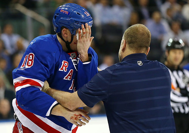Marc Staal of the New York Rangers suffered a notable eye injury this year when he was hit by a puck.