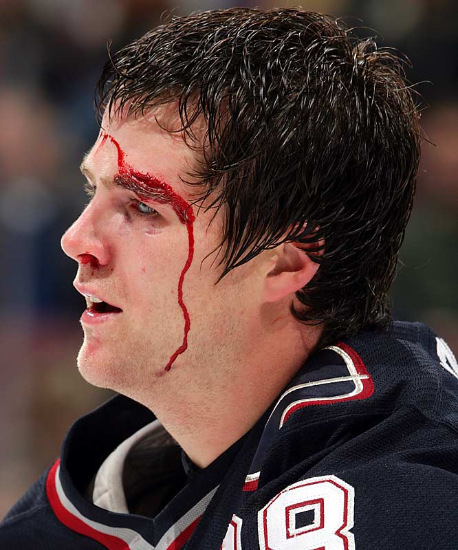 While plying his trade for Vancouver in in 2005, the journeyman blueliner had some red eyeliner applied by Ducks enforcer Todd Fedoruk during an exchange of fistic pleasantries.